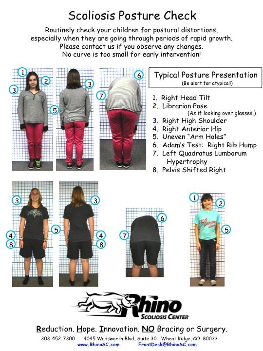 Scoliosis Posture Check